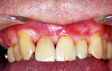 Case.1 前歯が1本欠損している場合