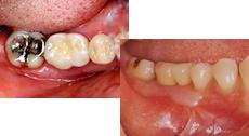 Case.2 奥歯が1本問題のある場合